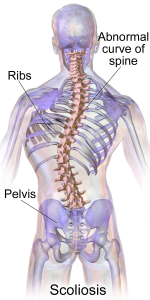 Orleans Chiropractor Scoliosis